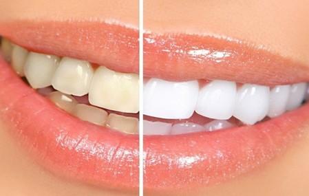 冷光牙齿美白效果图