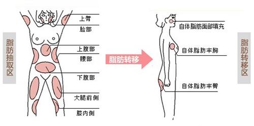 自体脂肪移植术