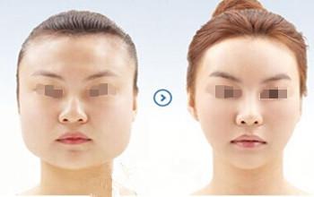 韩国ID整形医院下颌角手术