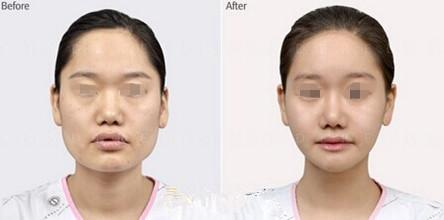 韩国新帝瑞娜整形医院下颌角手术