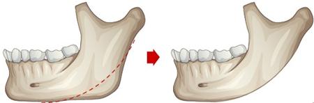下颌角切除术