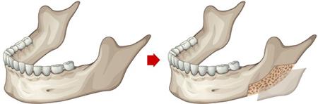 皮质截骨术