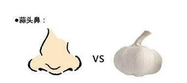 鼻头缩小术适合什么样的人群呢?