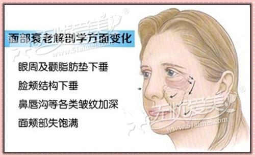 听说面部埋线除皱和注射微整是一对好搭档图片