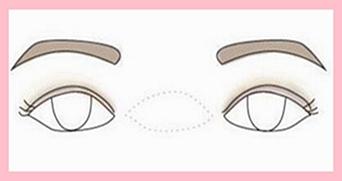 眼睛类型不同双眼皮手术各不同——实用型美眼攻略