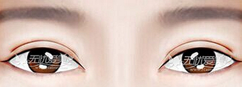 割双眼皮开眼角后出现凹增生