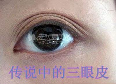 双眼皮宽变窄该怎么修复何时修复