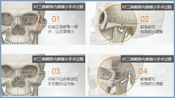 颧骨突出颧骨高怎么办?拯救方法在这里