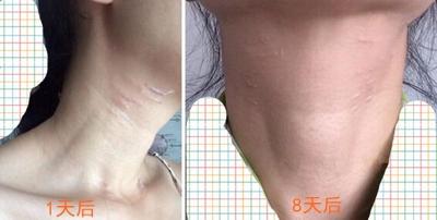 如果超声刀是去掉皱纹留下疤痕 你还敢用吗?