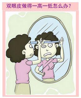丹凤眼整形变缝眼 眼整形失败率高达10%!!到底怪谁?