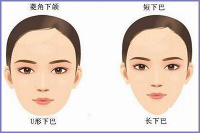 适合磨骨手术的脸型