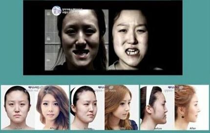 韩国Faceline磨骨手术