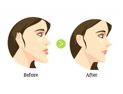 地包天牙齿矫正后