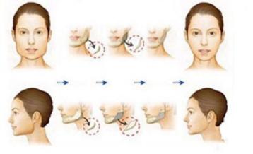 下颌角磨削术