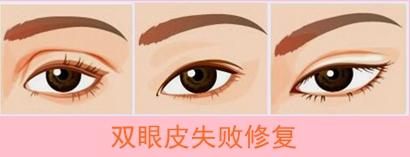韩国双眼皮修复玄炅倍和曹仁昌谁做的更好?