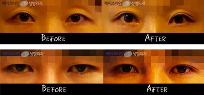 韩国faceline整形医院手术案例