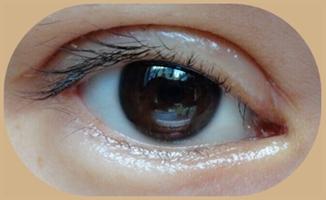 双眼皮术后浮肿