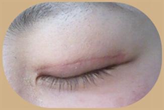 双眼皮术后闭眼有疤痕