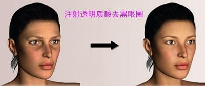 注射玻尿酸去黑眼圈
