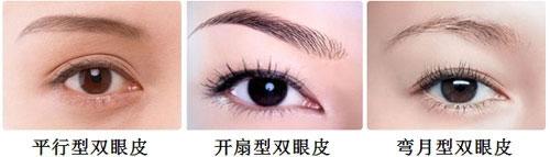 双眼皮手术类型示意图