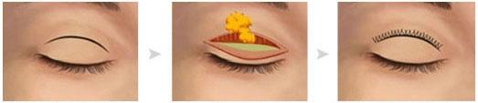 切开双眼皮手术