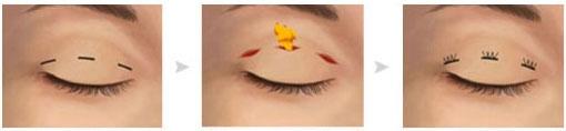 韩式双眼皮手术