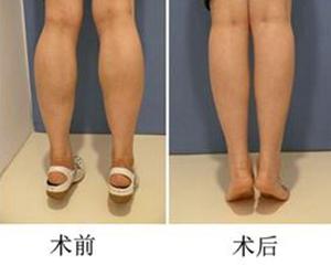 瘦腿针效果