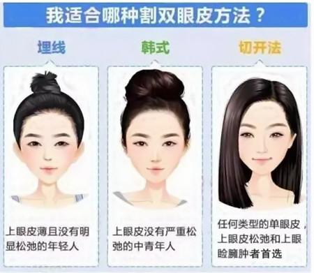 双眼皮手术方法