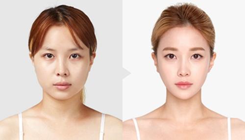 韩国面部轮廓整形医院