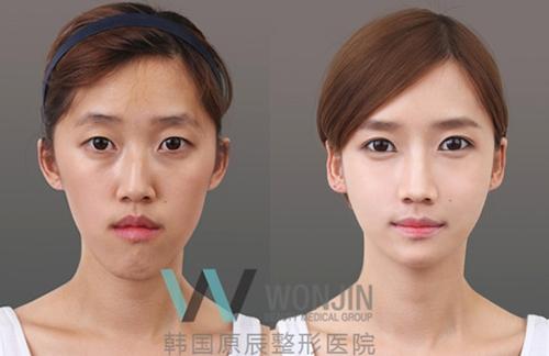 韩国原辰整形医院面部轮廓案例