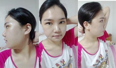 面部轮廓术后1周