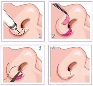 鼻孔缩小术