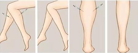 肉毒素瘦腿针