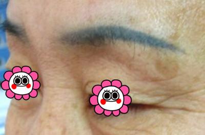 纹眉后眉毛变蓝