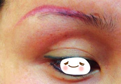 纹眉后眉毛变红