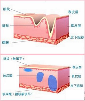 玻尿酸除皱