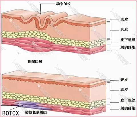 肉毒素除皱