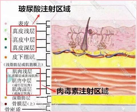 玻尿酸和肉毒素的注射层次