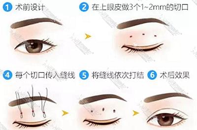 微创法双眼皮