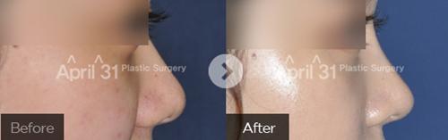 韩国的4月31日整形外科鼻整形案例