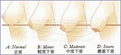 胸部下垂分级