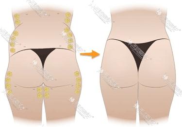 自体脂肪丰臀术