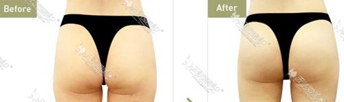 自体脂肪丰臀案例