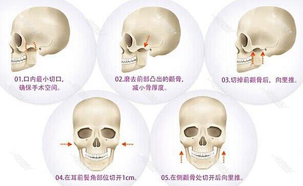 刘成胜改脸型