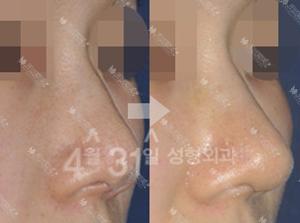 韩国4月31日鼻部整形案例