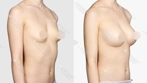 韩国TL胸部整形案例