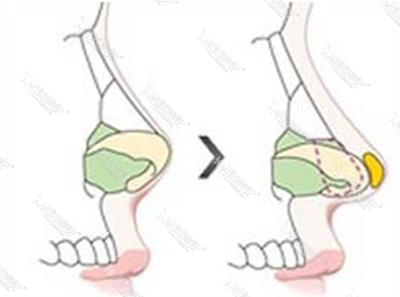 膨体隆鼻原理