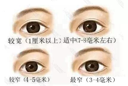 双眼皮宽度