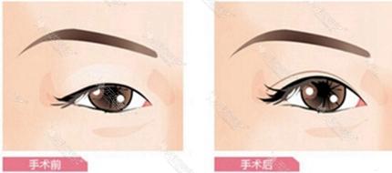 双眼皮手术眼球暴露程度