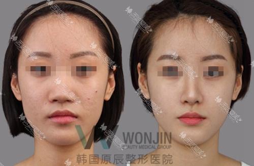 韩国原辰整形医院激光美肤案例